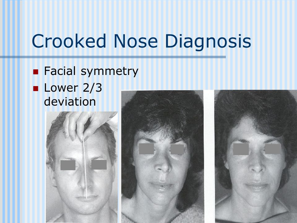 Crooked Nose Diagnosis Facial symmetry Lower 2/3 deviation