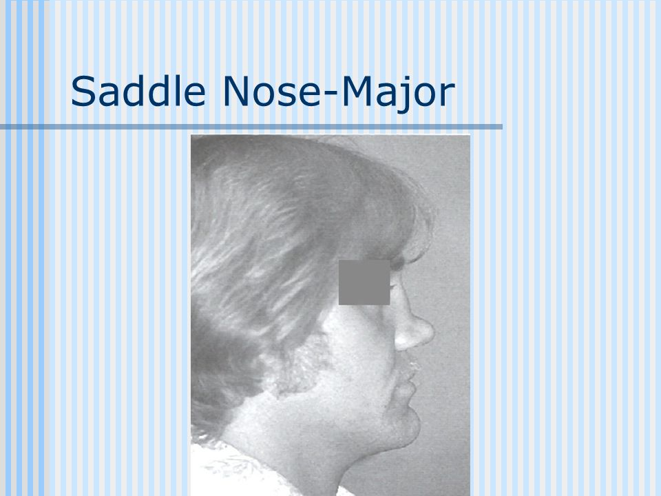 Saddle Nose-Major