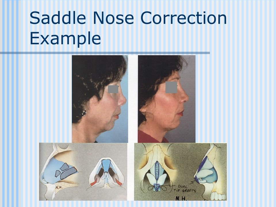 Saddle Nose Correction Example