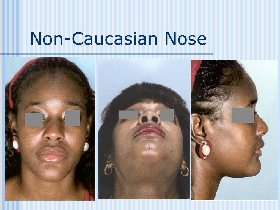 Non-Caucasian Nose