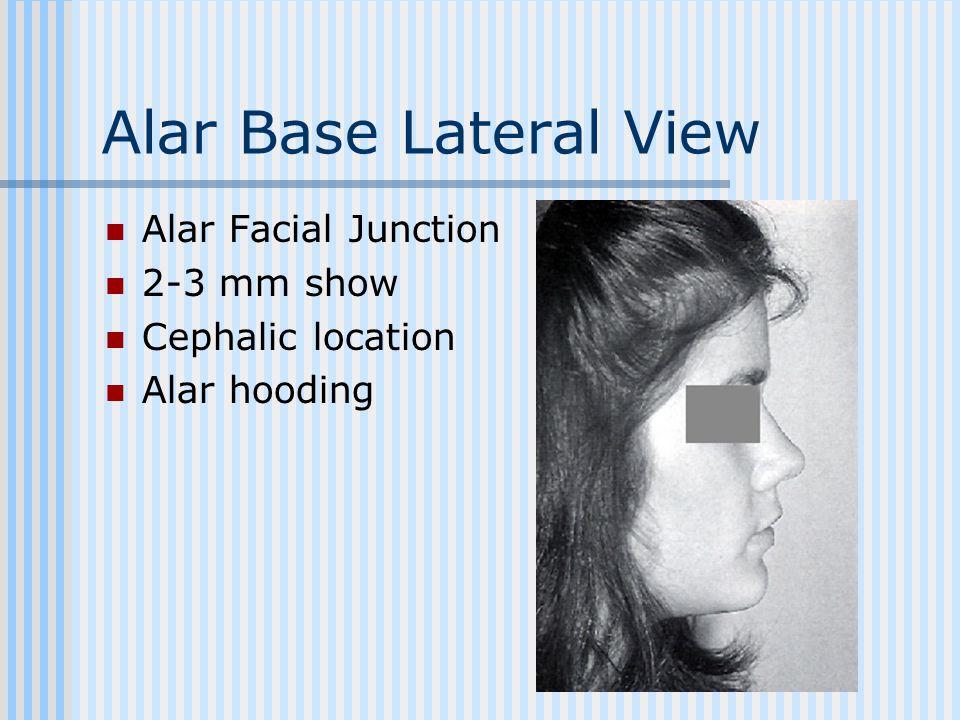 Alar Base Lateral View Alar Facial Junction 2-3 mm show Cephalic location Alar hooding