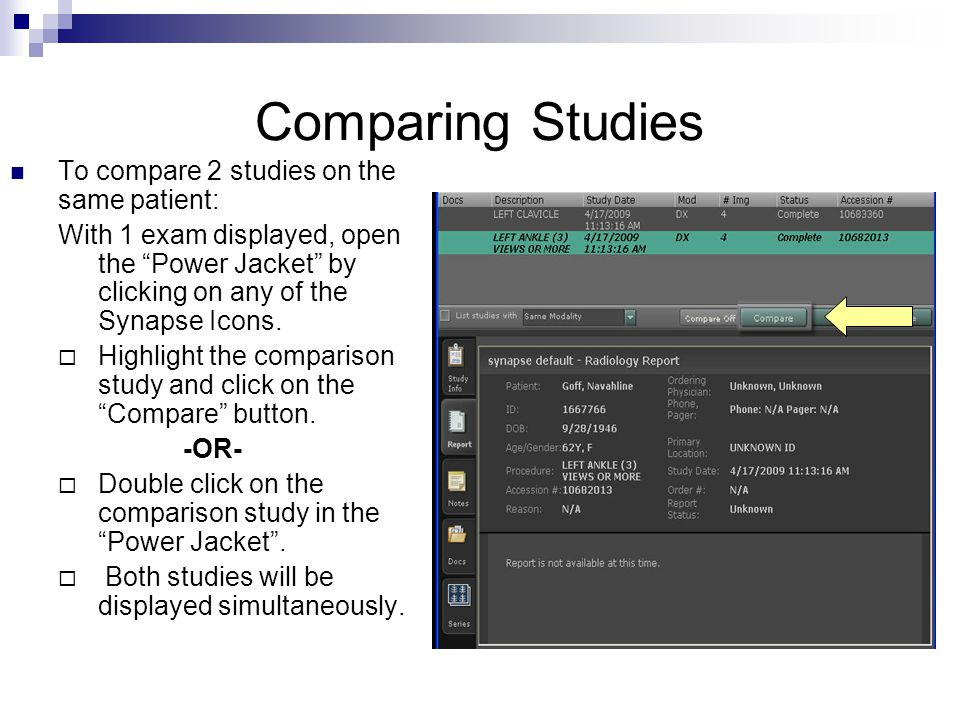 Comparing Studies To compare 2 studies on the same patient: With 1 exam displayed, open the Power Jacket by clicking on any of the Synapse Icons. High