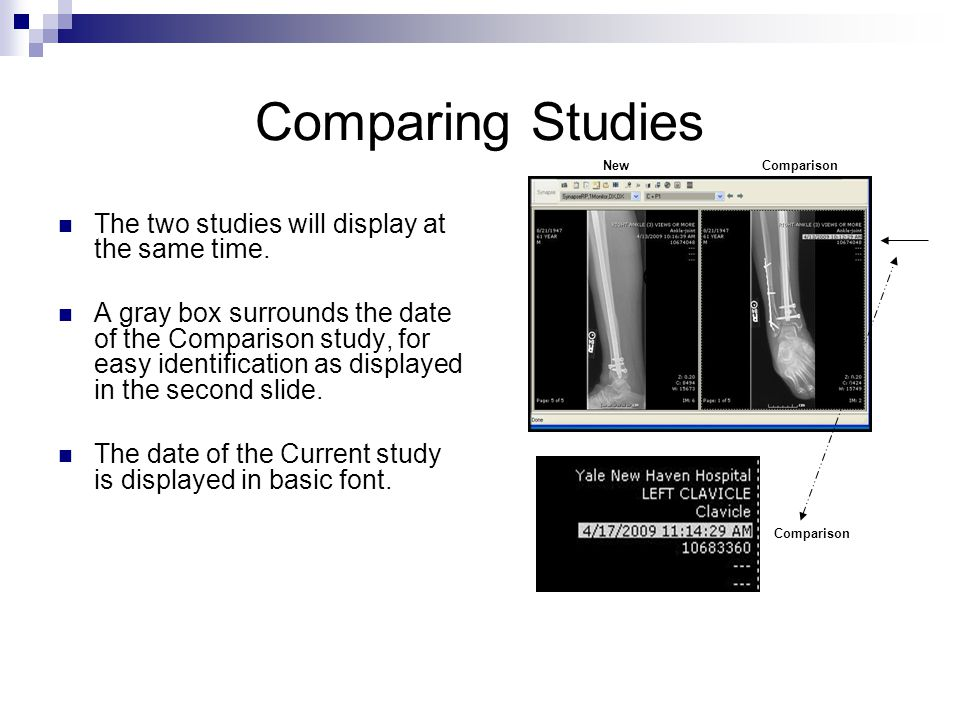 Comparing Studies The two studies will display at the same time. A gray box surrounds the date of the Comparison study, for easy identification as dis