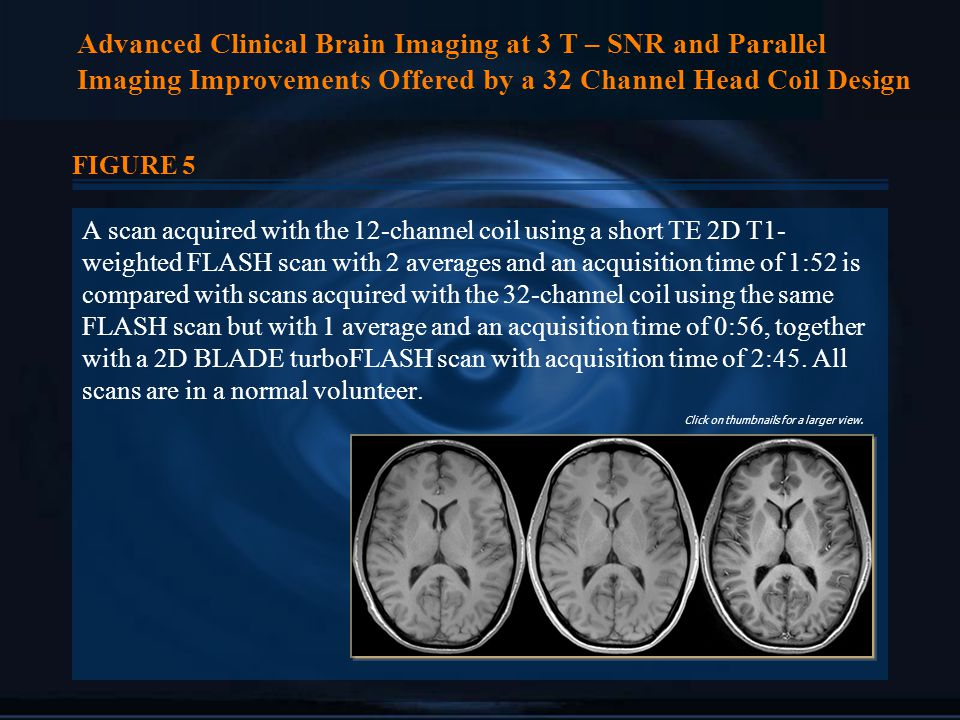 Advanced Clinical Brain Imaging at 3 T – SNR and Parallel Imaging Improvements Offered by a 32 Channel Head Coil Design FIGURE 5 A scan acquired with