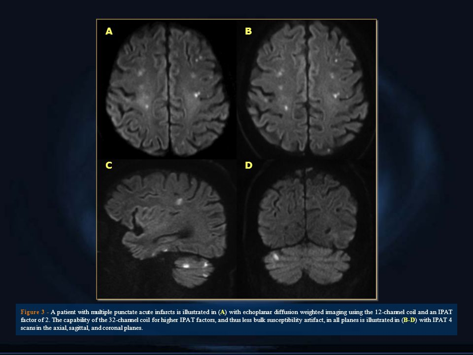 AB CD Figure 3 - A patient with multiple punctate acute infarcts is illustrated in (A) with echoplanar diffusion weighted imaging using the 12-channel coil and an IPAT factor of 2.