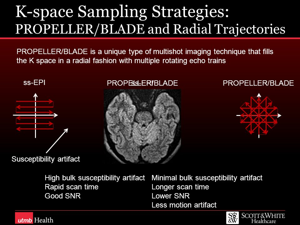 ss-EPI K-space Sampling Strategies: PROPELLER/BLADE and Radial Trajectories ss-EPI PROPELLER/BLADE PROPELLER/BLADE is a unique type of multishot imaging technique that fills the K space in a radial fashion with multiple rotating echo trains PROPELLER/BLADE Susceptibility artifact Minimal bulk susceptibility artifact Longer scan time Lower SNR Less motion artifact High bulk susceptibility artifact Rapid scan time Good SNR