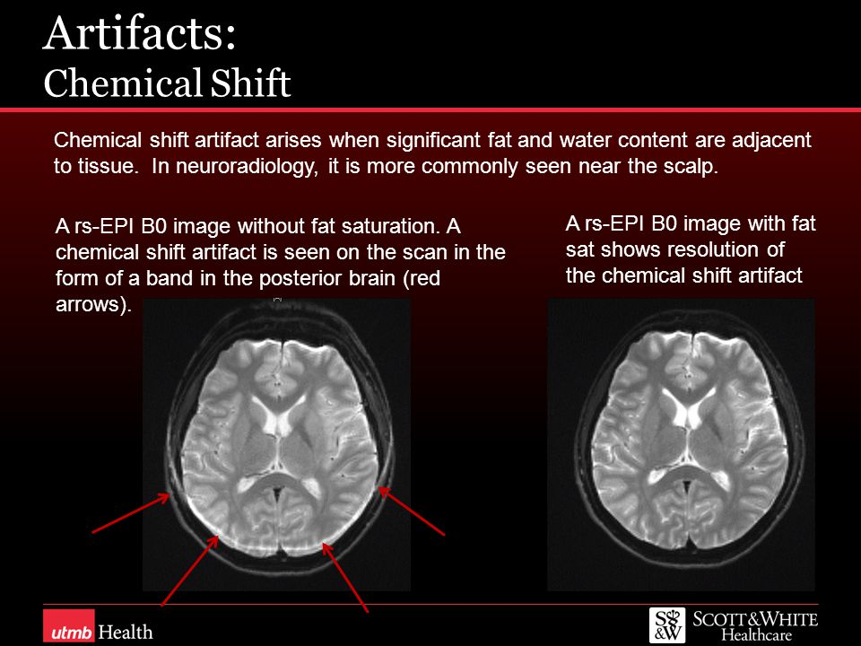 Artifacts: Chemical Shift Chemical shift artifact arises when significant fat and water content are adjacent to tissue. In neuroradiology, it is more