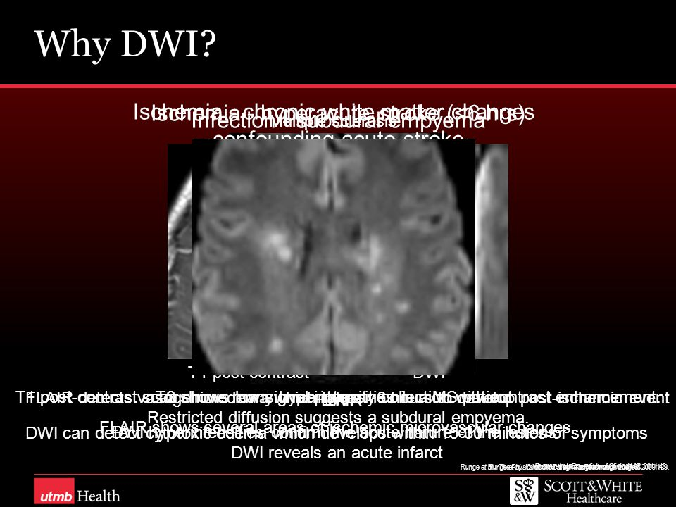 Why DWI? Runge et al. The Physics of Clinical MR Taught through Images. 2009 : 129. Ischemia - hyperacute stroke (<6 hrs) FLAIR DWI FLAIR detects vaso