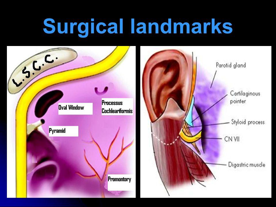 Surgical landmarks