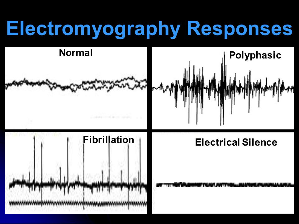 Electromyography Responses Normal Polyphasic Fibrillation Electrical Silence