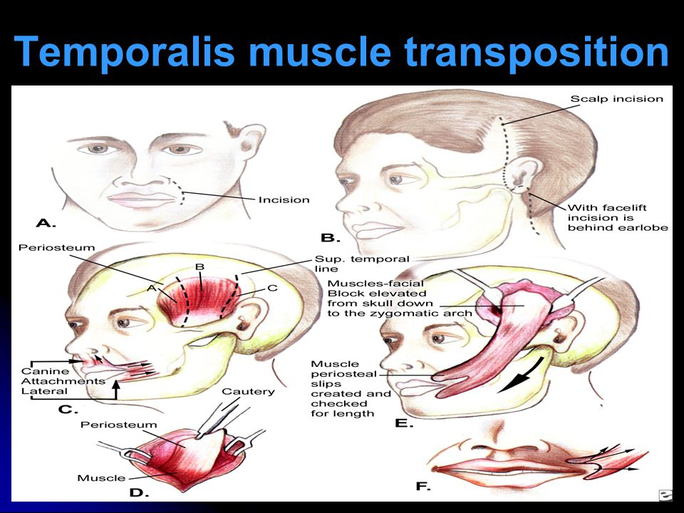 Temporalis muscle transposition