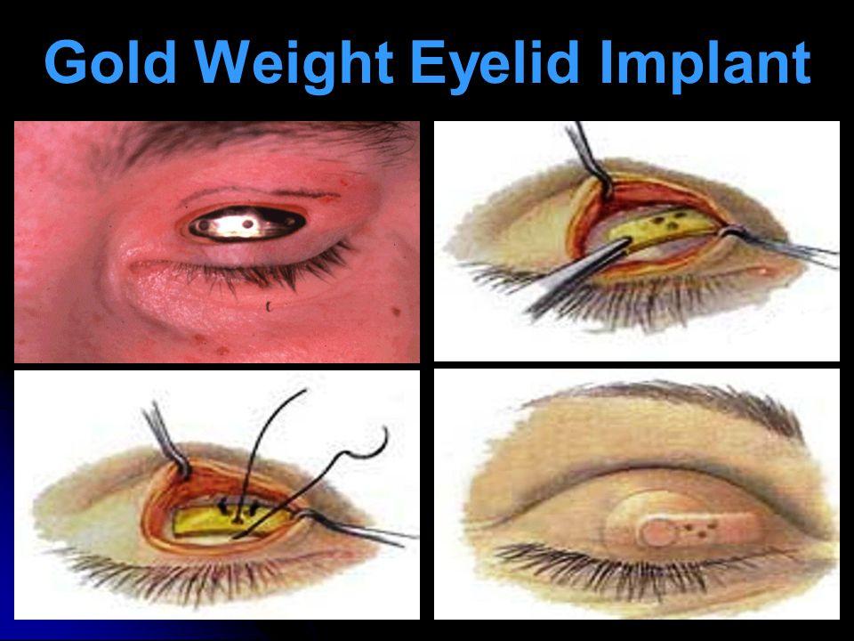 Gold Weight Eyelid Implant
