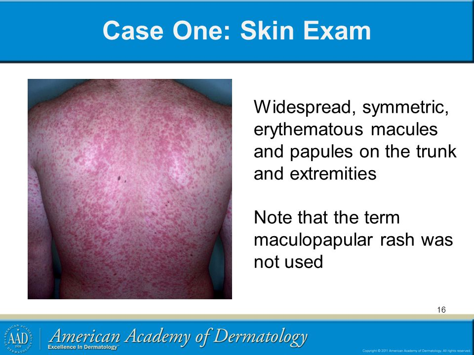 Case One: Skin Exam Widespread, symmetric, erythematous macules and papules on the trunk and extremities Note that the term maculopapular rash was not used 16