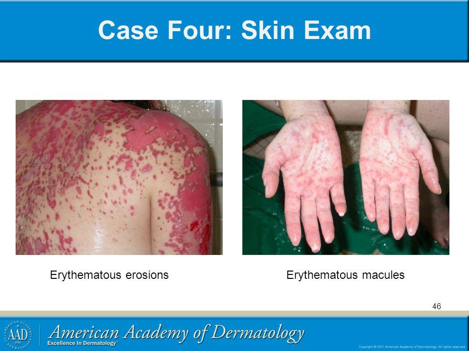 Case Four: Skin Exam 46 Erythematous erosionsErythematous macules