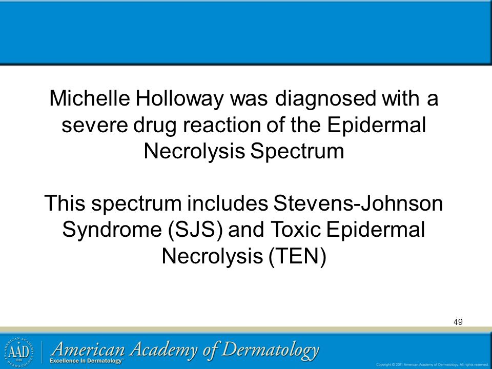 Michelle Holloway was diagnosed with a severe drug reaction of the Epidermal Necrolysis Spectrum This spectrum includes Stevens-Johnson Syndrome (SJS) and Toxic Epidermal Necrolysis (TEN) 49