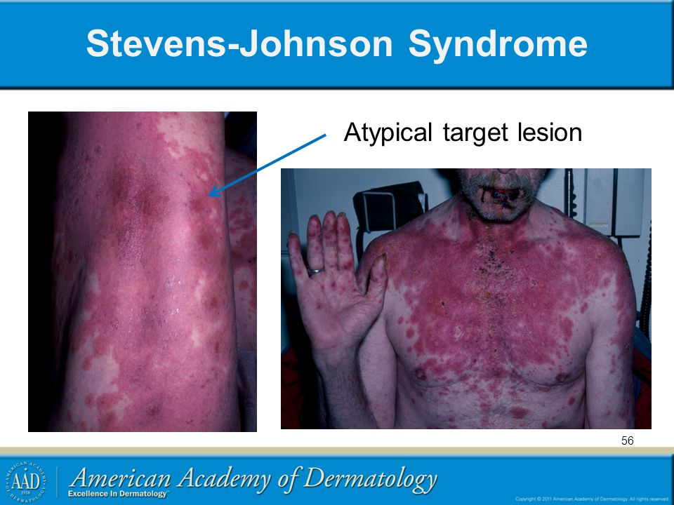 Stevens-Johnson Syndrome Atypical target lesion 56