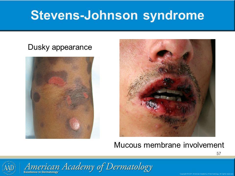 Stevens-Johnson syndrome Mucous membrane involvement Dusky appearance 57