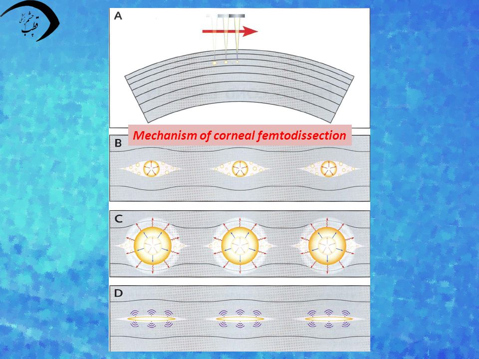 Mechanism of corneal femtodissection