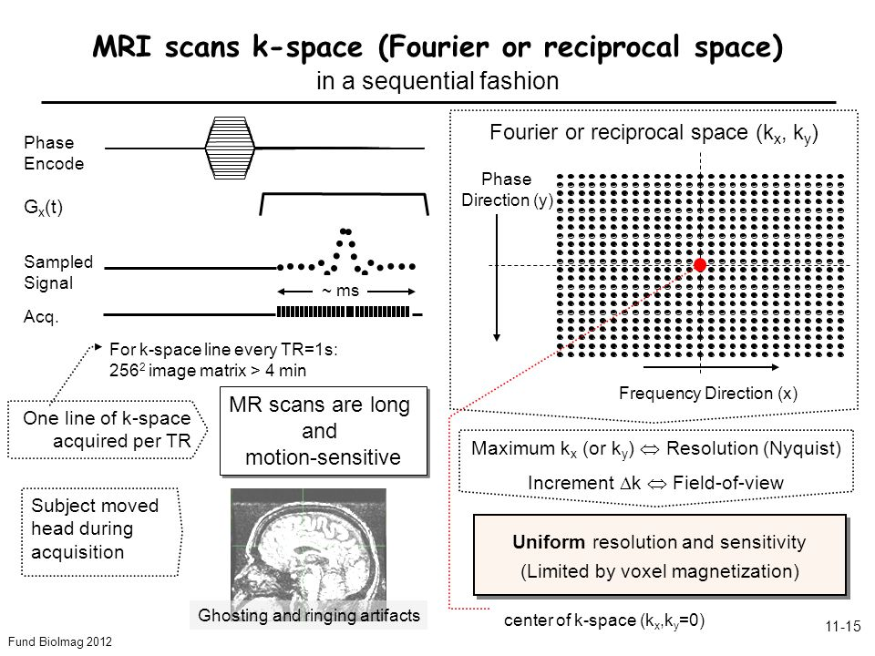 Fund BioImag 2012 11-15 Fourier or reciprocal space (k x, k y ) G x (t) Phase Encode Acq.