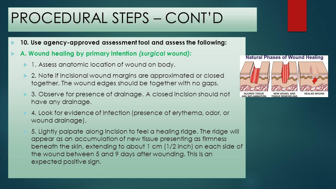 PROCEDURAL STEPS – CONTD B.