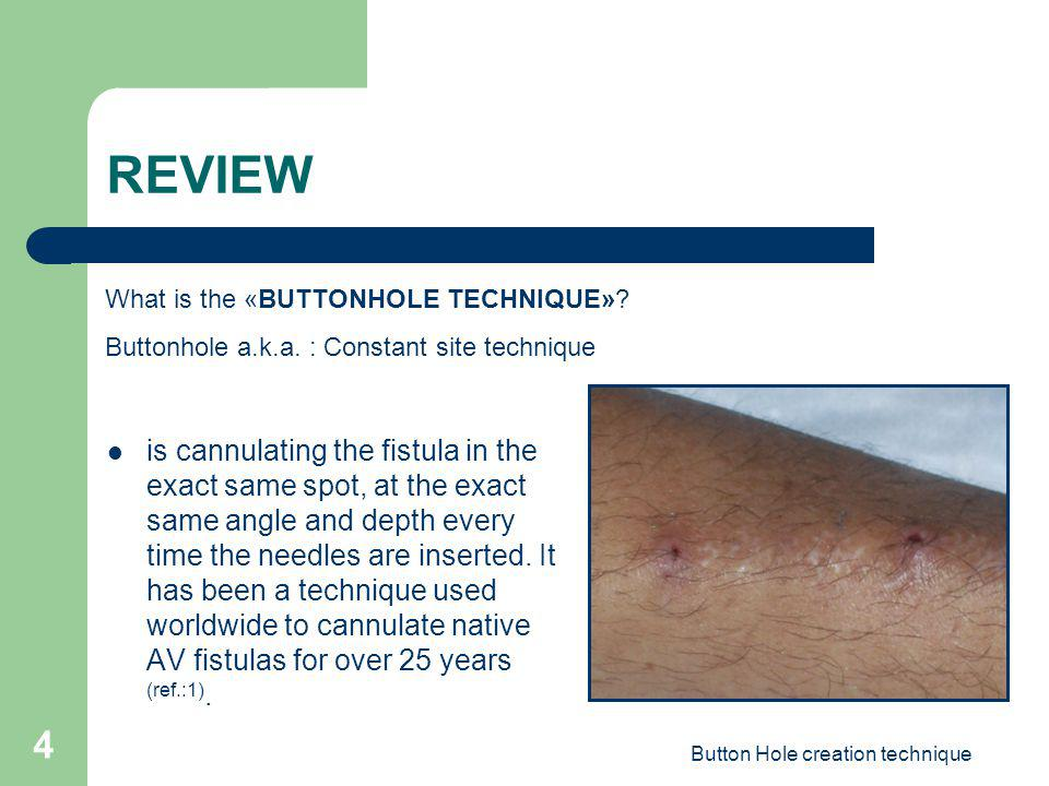 Button Hole creation technique 4 REVIEW is cannulating the fistula in the exact same spot, at the exact same angle and depth every time the needles ar