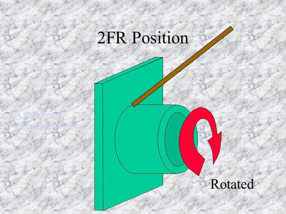 2FR Position Rotated A split bead technique is best used.