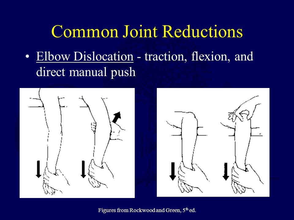 Common Joint Reductions Elbow Dislocation - traction, flexion, and direct manual push Figures from Rockwood and Green, 5 th ed.