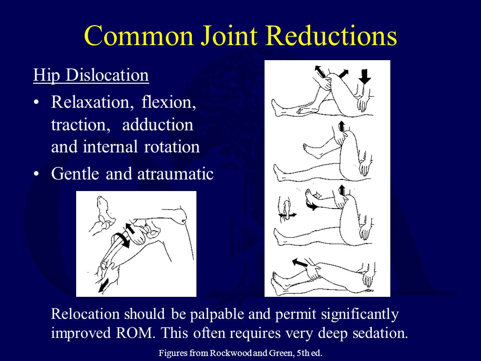 Common Joint Reductions Hip Dislocation Relaxation, flexion, traction, adduction and internal rotation Gentle and atraumatic Relocation should be palpable and permit significantly improved ROM.