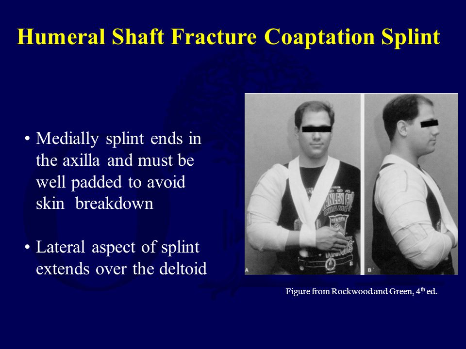 Medially splint ends in the axilla and must be well padded to avoid skin breakdown Lateral aspect of splint extends over the deltoid Figure from Rockw