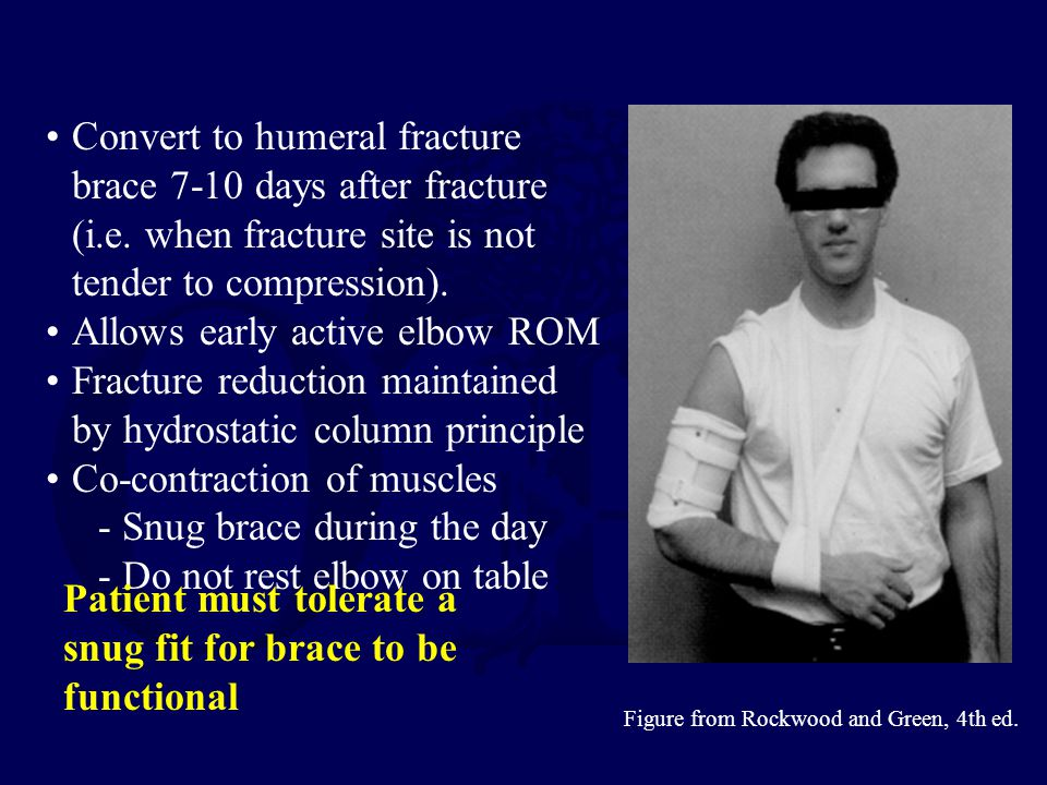 Convert to humeral fracture brace 7-10 days after fracture (i.e.