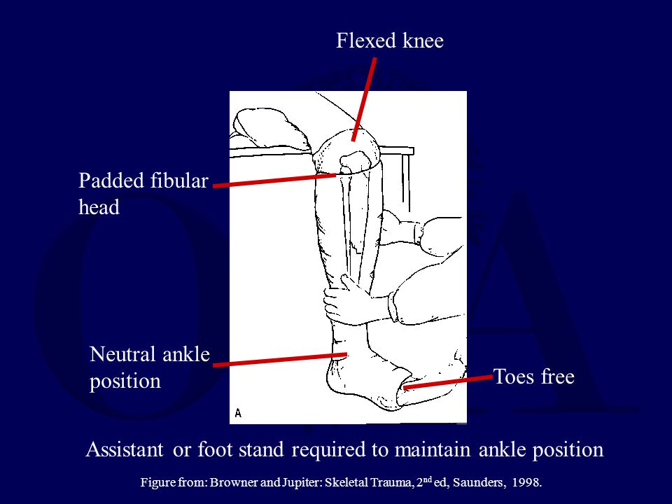 Padded fibular head Flexed knee Neutral ankle position Toes free Assistant or foot stand required to maintain ankle position Figure from: Browner and