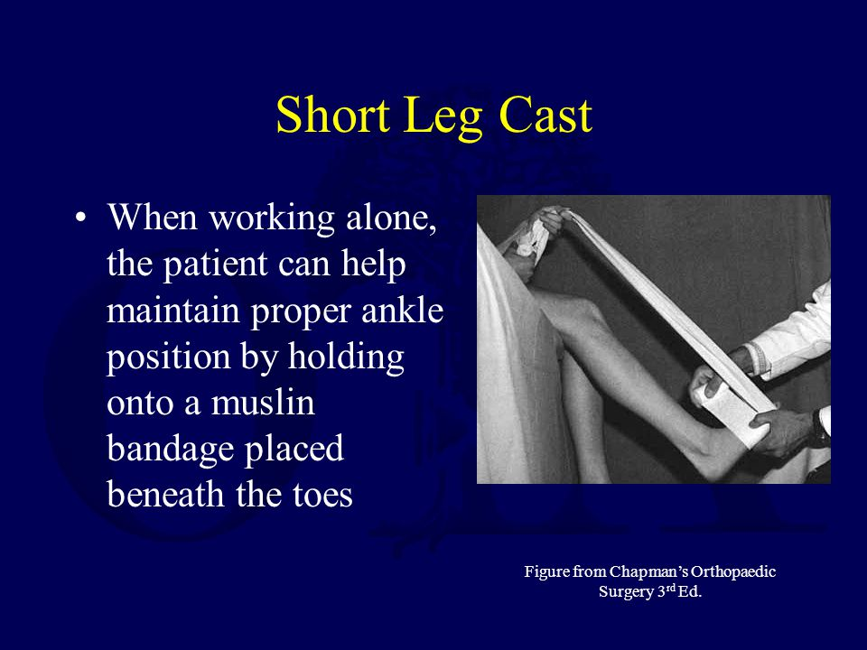 Short Leg Cast When working alone, the patient can help maintain proper ankle position by holding onto a muslin bandage placed beneath the toes Figure from Chapmans Orthopaedic Surgery 3 rd Ed.