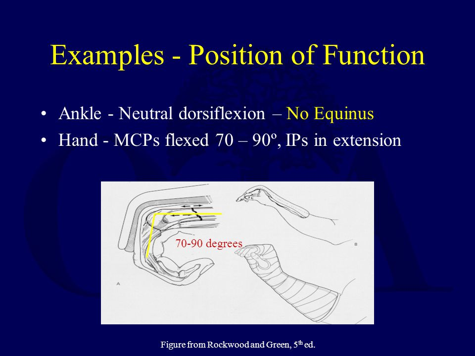 Examples - Position of Function Ankle - Neutral dorsiflexion – No Equinus Hand - MCPs flexed 70 – 90º, IPs in extension 70-90 degrees Figure from Rock