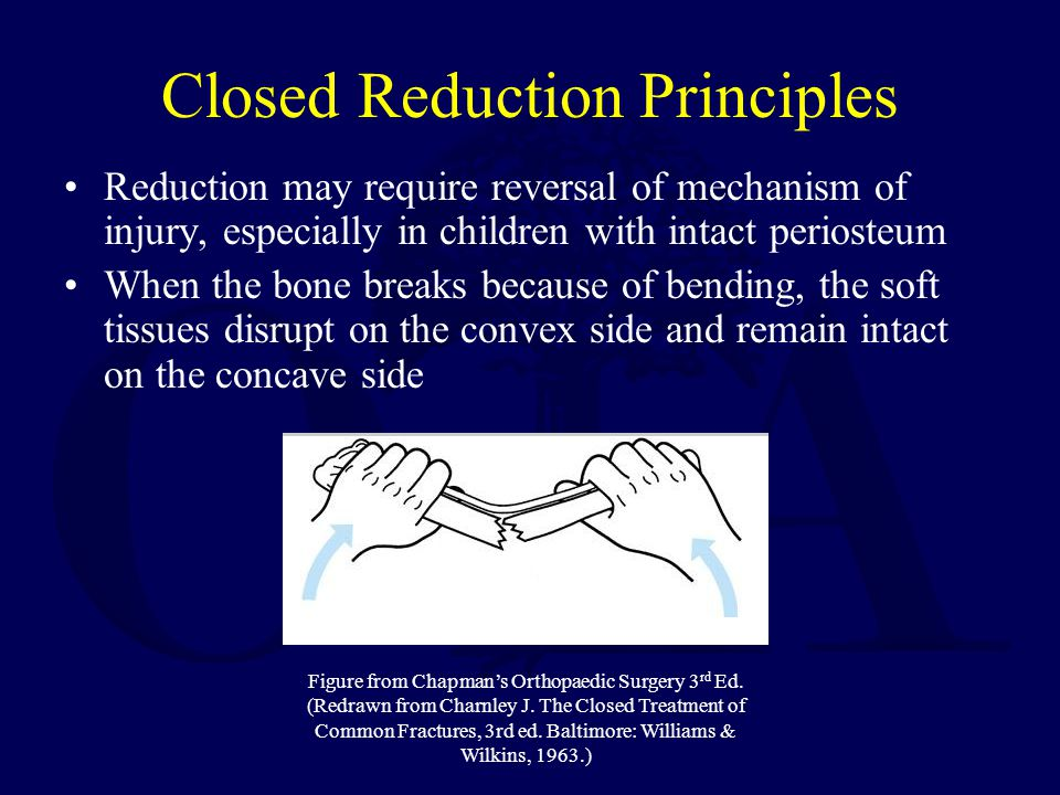 Closed Reduction Principles Reduction may require reversal of mechanism of injury, especially in children with intact periosteum When the bone breaks because of bending, the soft tissues disrupt on the convex side and remain intact on the concave side Figure from Chapmans Orthopaedic Surgery 3 rd Ed.