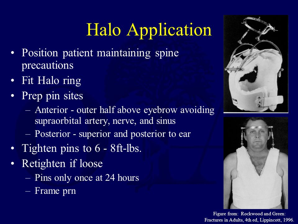 Halo Application Position patient maintaining spine precautions Fit Halo ring Prep pin sites –Anterior - outer half above eyebrow avoiding supraorbital artery, nerve, and sinus –Posterior - superior and posterior to ear Tighten pins to 6 - 8ft-lbs.