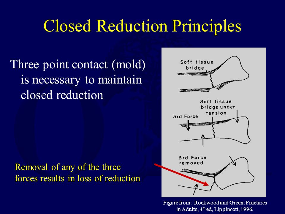 Closed Reduction Principles Three point contact (mold) is necessary to maintain closed reduction Removal of any of the three forces results in loss of
