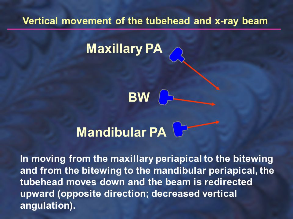 Maxillary PA BW Mandibular PA Vertical movement of the tubehead and x-ray beam In moving from the maxillary periapical to the bitewing and from the bitewing to the mandibular periapical, the tubehead moves down and the beam is redirected upward (opposite direction; decreased vertical angulation).
