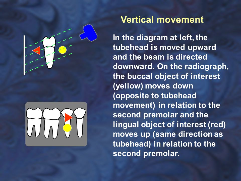 In the diagram at left, the tubehead is moved upward and the beam is directed downward. On the radiograph, the buccal object of interest (yellow) move