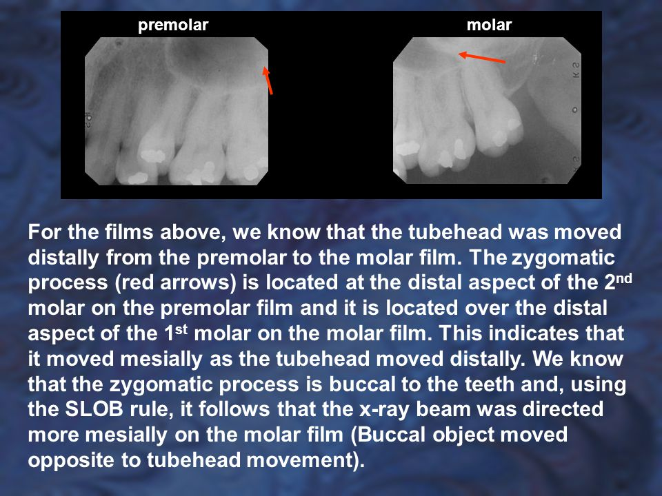 For the films above, we know that the tubehead was moved distally from the premolar to the molar film. The zygomatic process (red arrows) is located a
