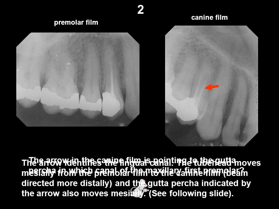 canine film premolar film The arrow in the canine film is pointing to the gutta percha in which canal of the maxillary first premolar.
