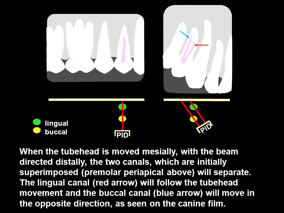 PID lingual buccal When the tubehead is moved mesially, with the beam directed distally, the two canals, which are initially superimposed (premolar periapical above) will separate.