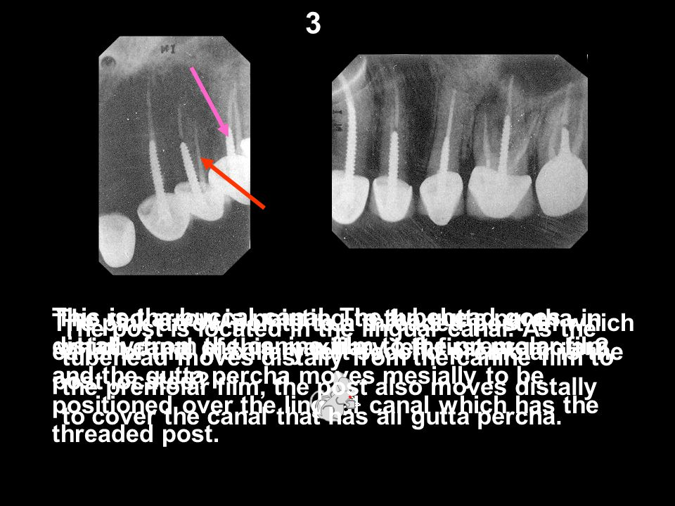 The red arrow is pointing to the gutta percha in which canal of this maxillary left first premolar? This is the buccal canal. The tubehead goes distal