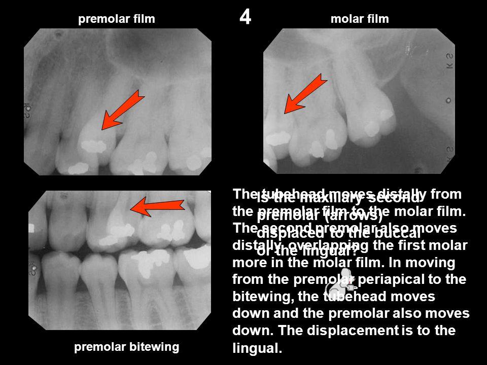 Is the maxillary second premolar (arrows) displaced to the buccal or the lingual? premolar filmmolar film premolar bitewing 4 The tubehead moves dista