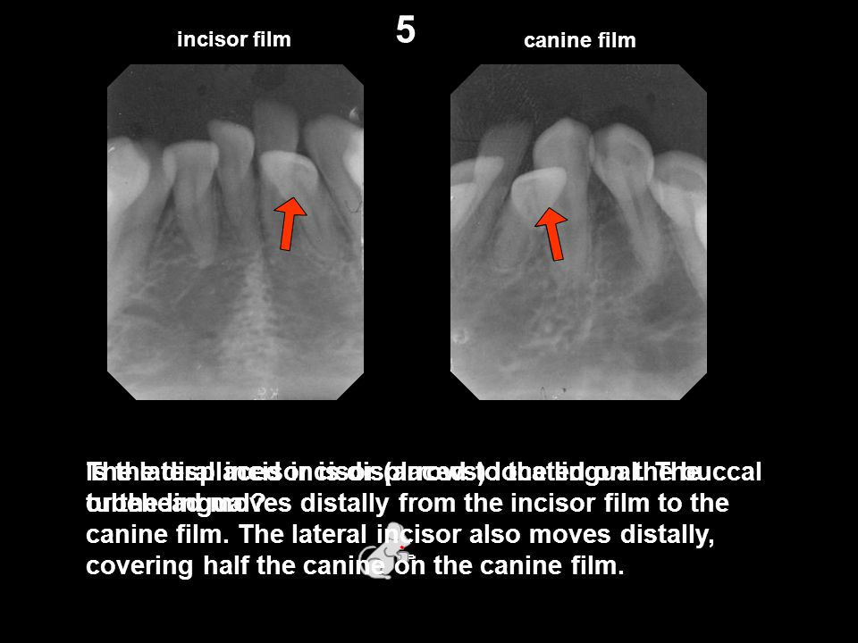incisor film canine film Is the displaced incisor (arrows) located on the buccal or the lingual? 5 The lateral incisor is displaced to the lingual. Th