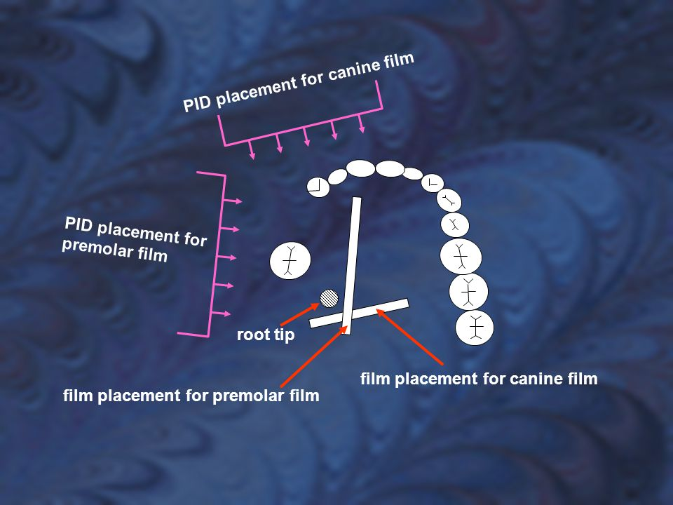 film placement for canine film film placement for premolar film PID placement for premolar film PID placement for canine film root tip
