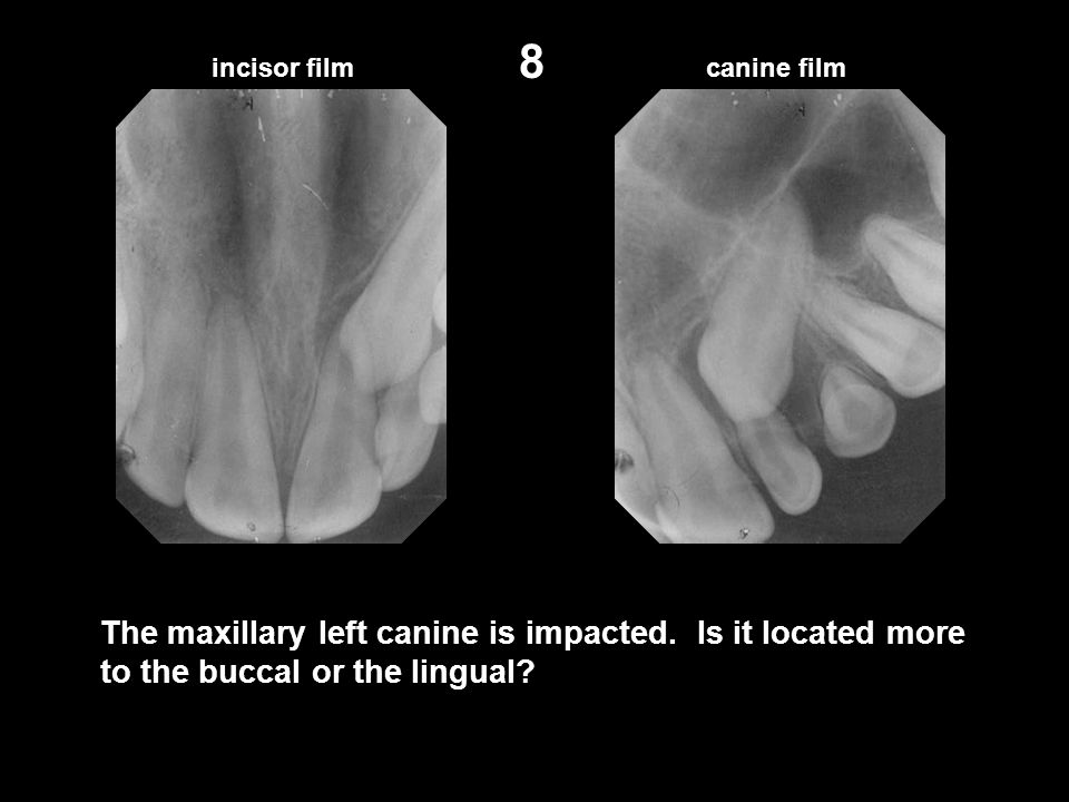 canine film 8 The maxillary left canine is impacted. Is it located more to the buccal or the lingual?