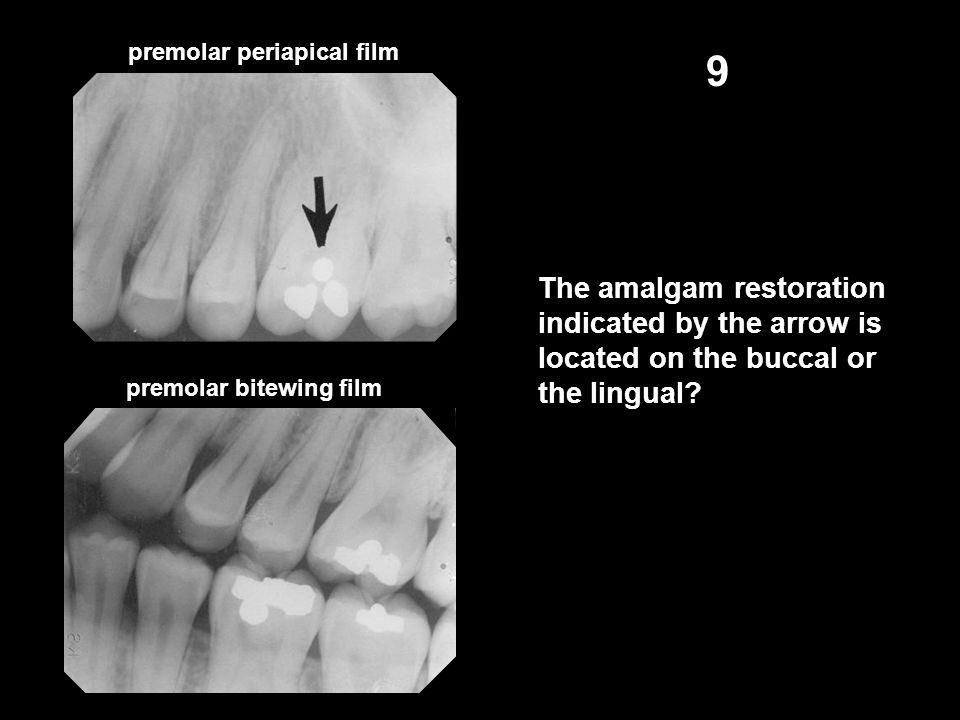 premolar bitewing film 9 The amalgam restoration indicated by the arrow is located on the buccal or the lingual.