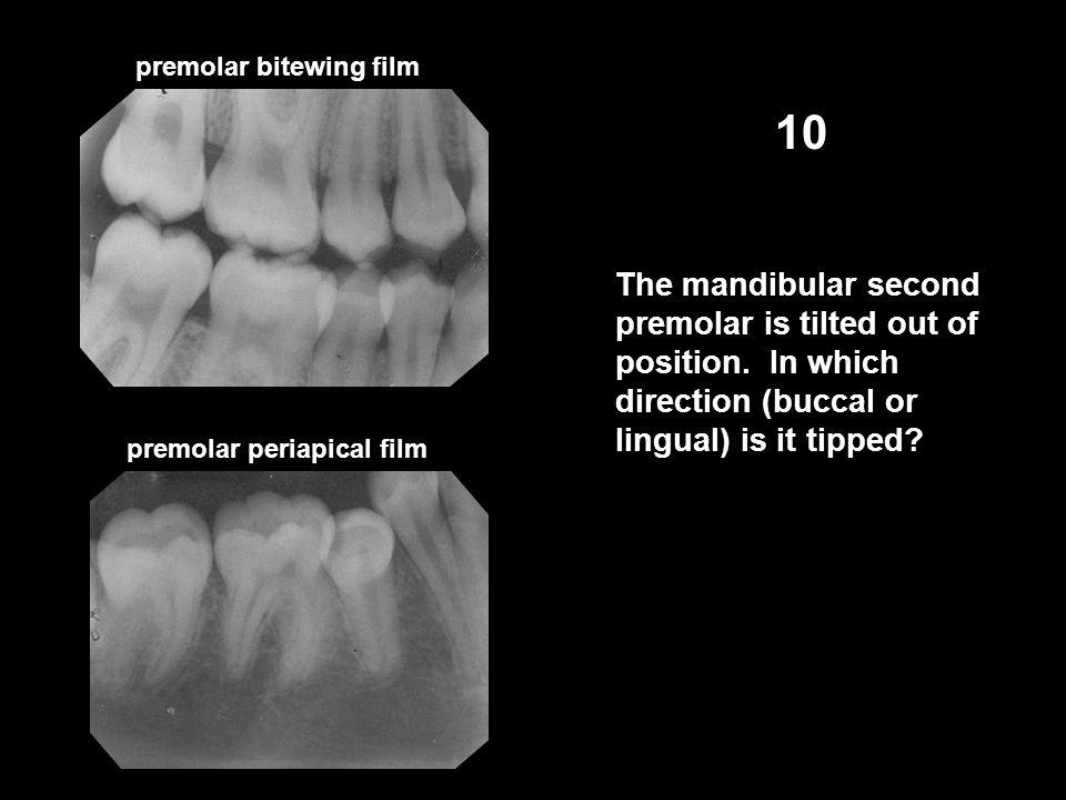 premolar bitewing film 10 The mandibular second premolar is tilted out of position.
