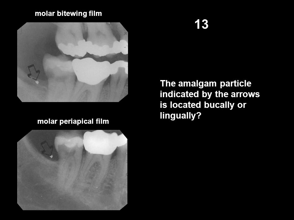 molar bitewing film molar periapical film 13 The amalgam particle indicated by the arrows is located bucally or lingually?