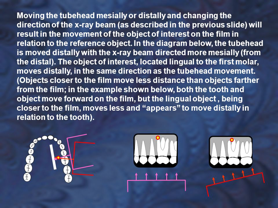 Moving the tubehead mesially or distally and changing the direction of the x-ray beam (as described in the previous slide) will result in the movement